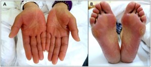 Care For Hand-Foot Syndrome (HFS)