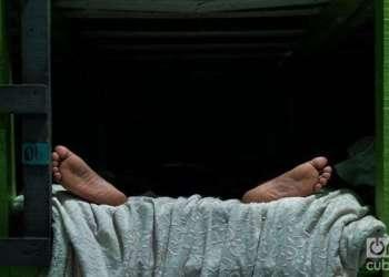 Dry foot, Cuban foot...Photo: Irina Dambrauskas