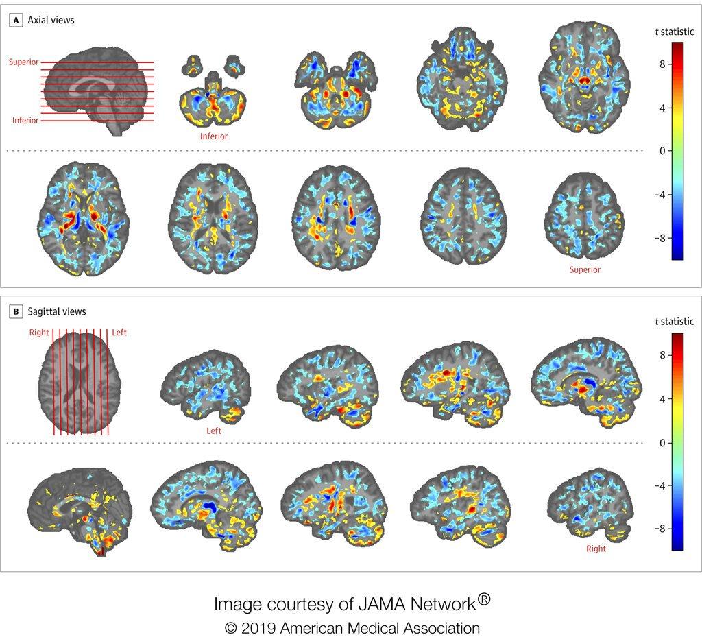 Foto de diversas tomografías cerebrales de funcionarios estadounidenses que estaban en Cuba, comparadas con las de un grupo de control, en una foto suministrada por la Asociación Médica de EEUU en julio del 2019. (Asociación Médica de EEUU via AP)