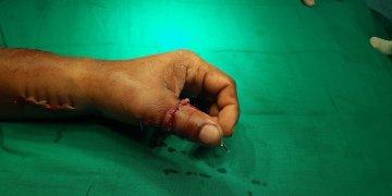 Mano del joven Ahmed Campuzano Villacampa al finalizar la cirugía. Foto: Juventúd Rebelde