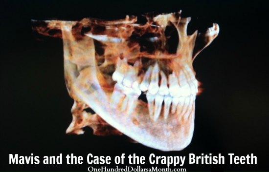 Crappy British Teeth