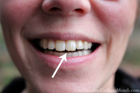 How to fix a small chipped tooth