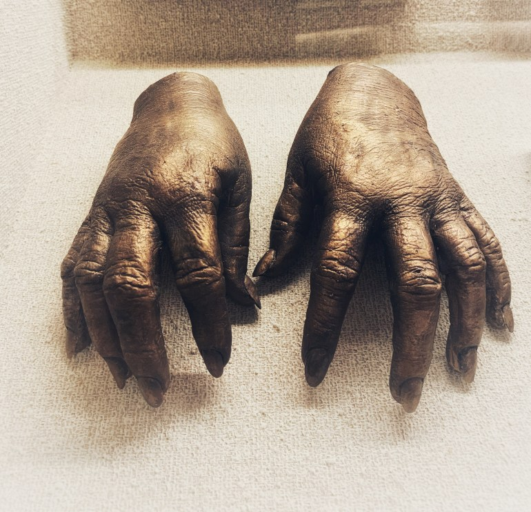 : The Hand Collection at Baylor Medical Center in Dallas, Texas