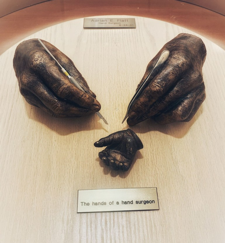 The Hands of a Surgeon: Bronze Historic Hands at Baylor University Medical Center in Dallas, Texas