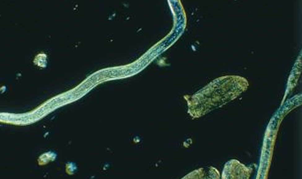 Adult female root-lesion nematode (150x) (Dr. John Potter, formerly Agriculture and Agri-Food Canada)