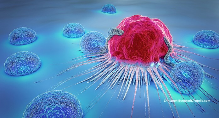 Prostate Aid Germany: Illustration picture - cancer cells