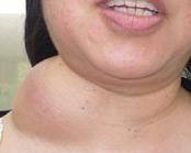 Лимфангиома брюшной полости