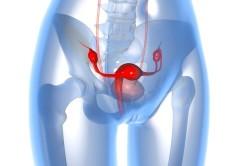 Доброкачественные образования в гинекологии