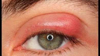 Photo of Inflammation of the Eyes: Causes, Treatment & Symptoms