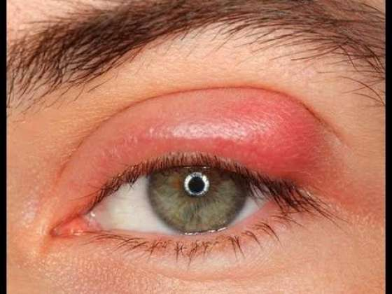 Inflammation of the Eyes