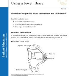 diagram of brace [ 1391 x 1800 Pixel ]