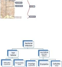 carbuncle diagram [ 1273 x 1800 Pixel ]