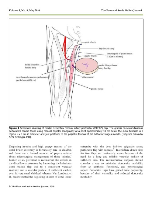 small resolution of medial circumflex artery flap final wordpress com pages 1 6 text version fliphtml5