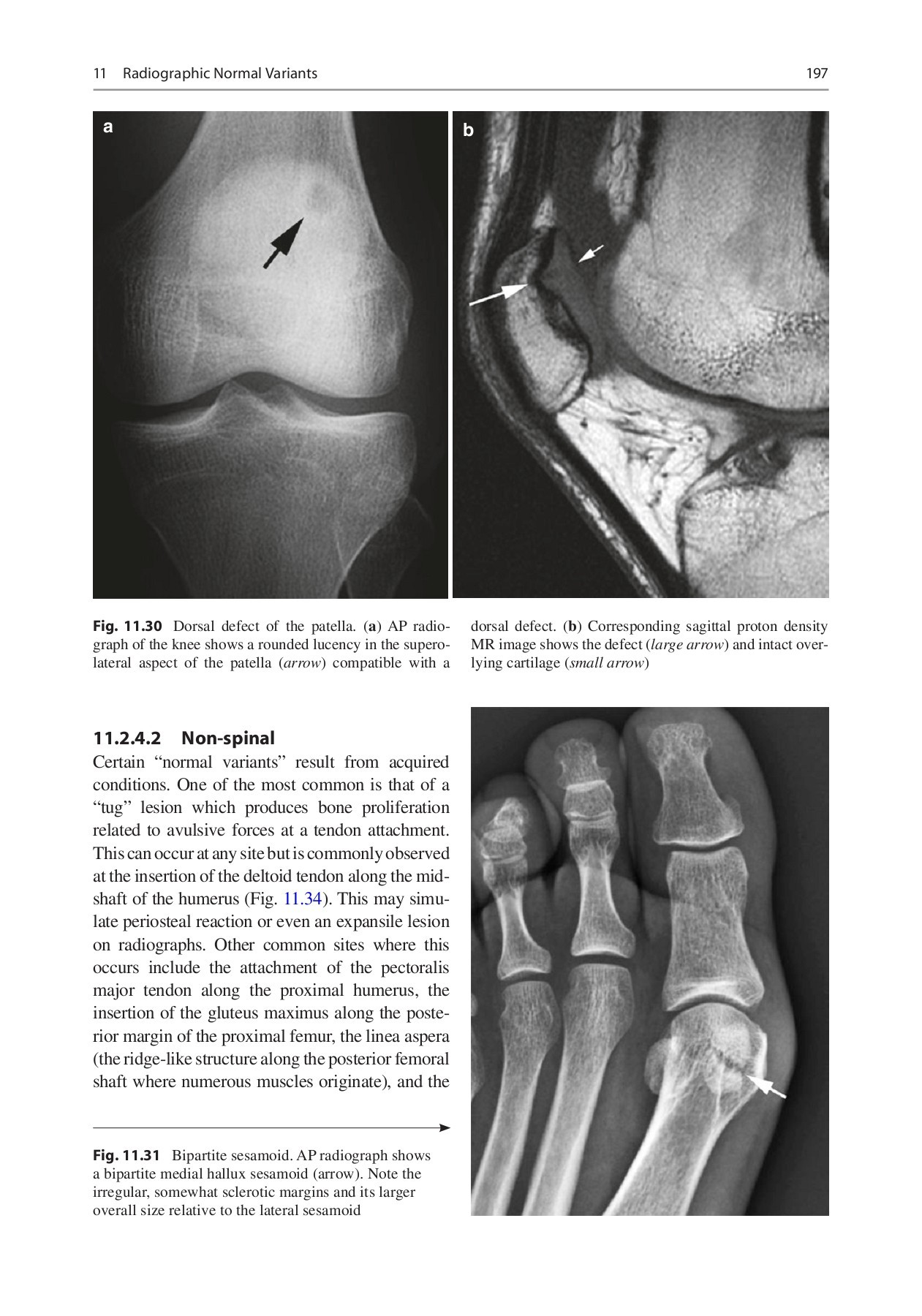medium resolution of pitfalls in musculoskeletal radiology pages 201 250 text version fliphtml5