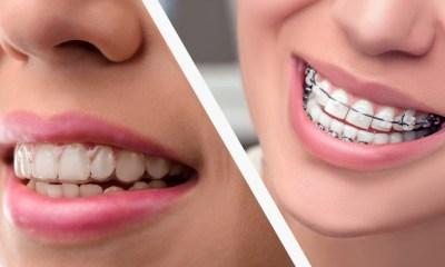 best ortodontist