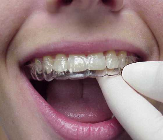 7 Things You Should Know About Invisalign 1