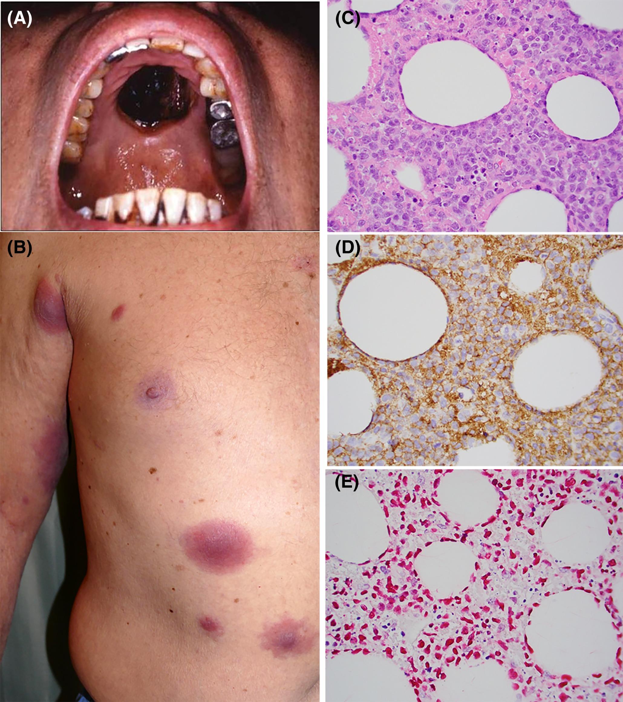 boggieboardcottage: Extranodal Nkt Cell Lymphoma Symptoms