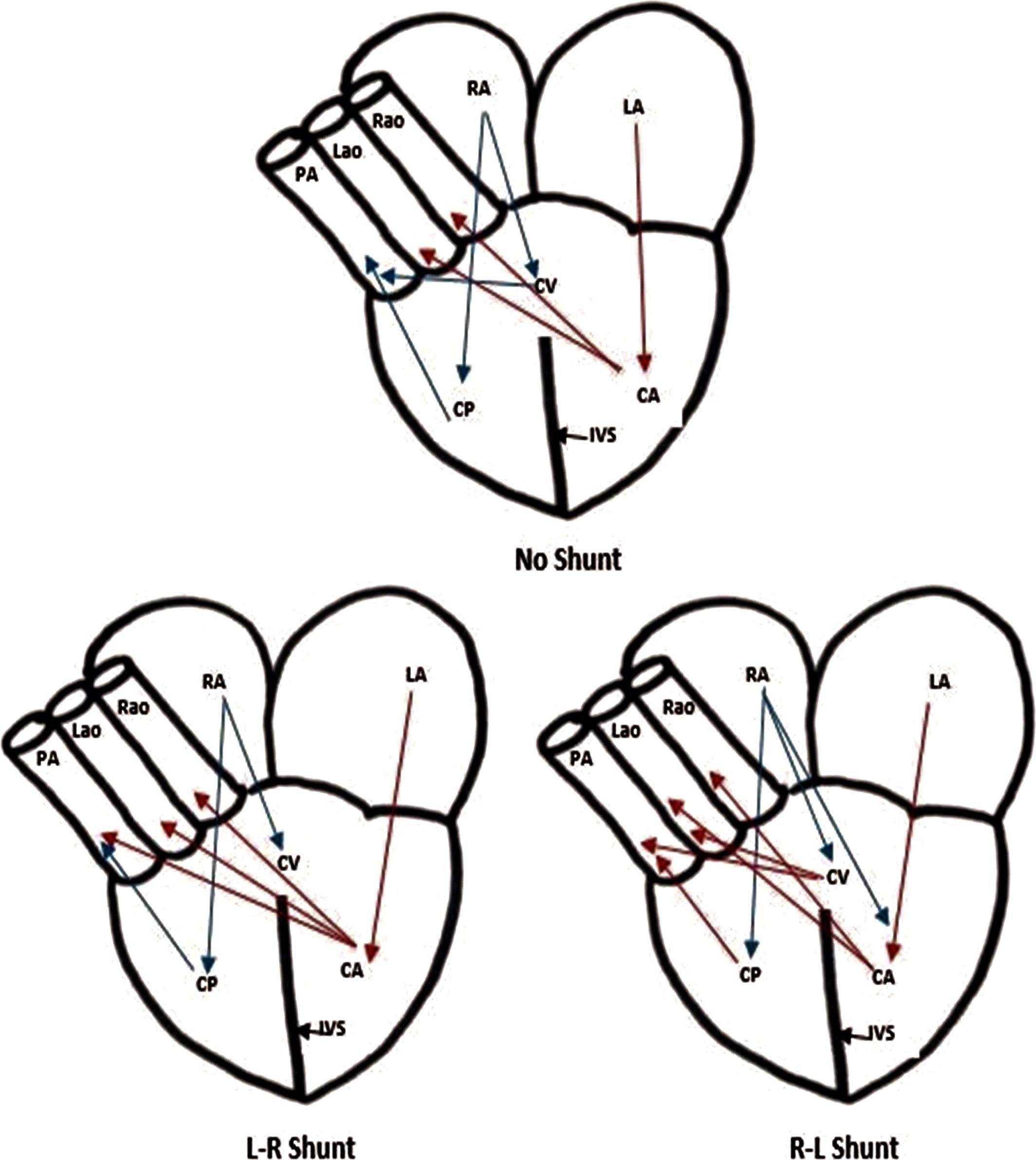 The Vertebrate Heart An Evolutionary Perspective