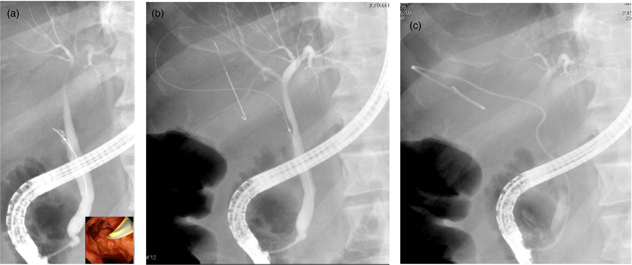 Drain In Liver After Gallbladder Surgery - Best Drain Photos Primagem.Org