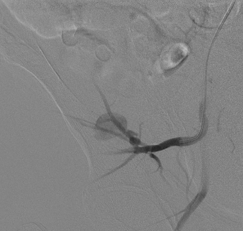 Pseudoaneurysm of the superior gluteal artery following
