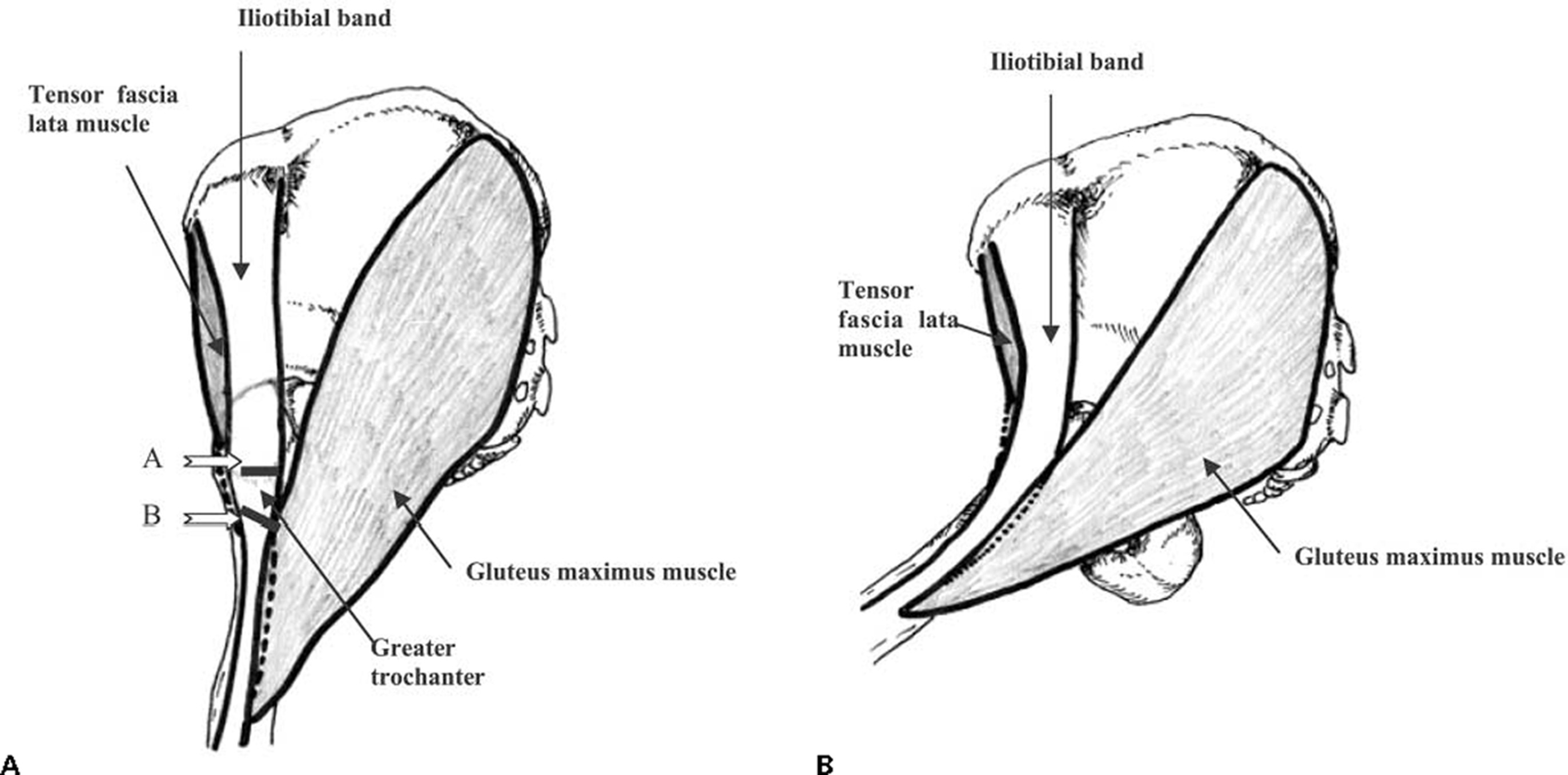 Dynamic Sonography Of External Snapping Hip Syndrome