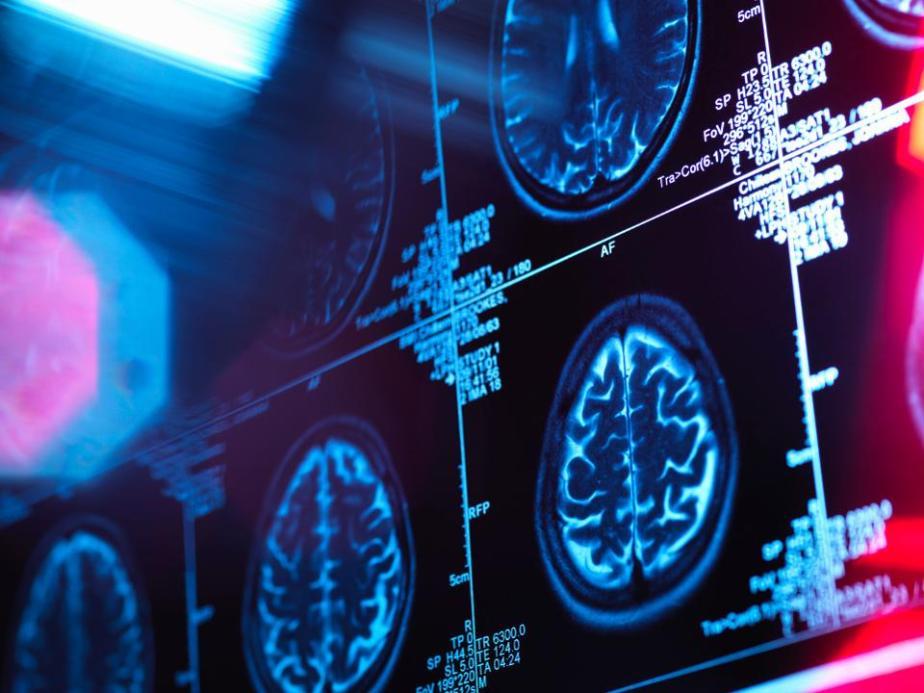 Human brain scan in a neurology clinic