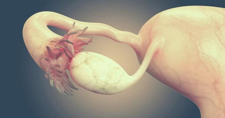 ból jajnika