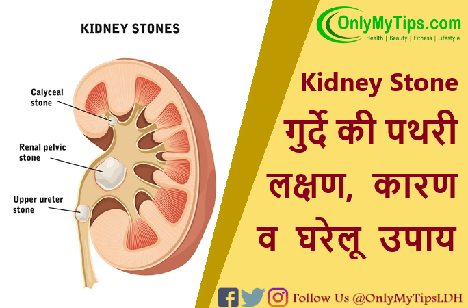 kidney-stone-home-remedies.png