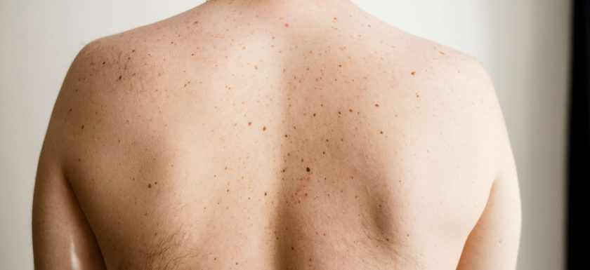 An amab person with freckles on their back faces away from the camera. Photos.