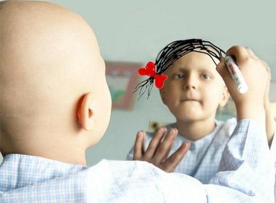 طفلة ترسم لنفسها شعرا في المرأة بعد ان فقدته لاصابتها بمرض السرطان