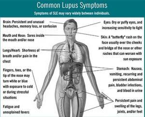lupuswomen