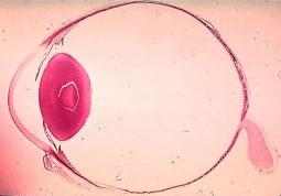 De oogbol