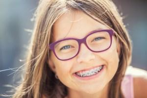 子供の歯列矯正のメリット
