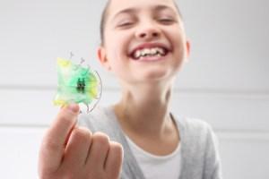 歯の傾きによる上顎前突