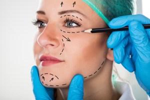 顎変形症の場合は外科手術