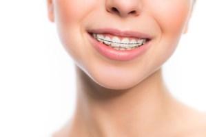 歯並び全体を整える全体矯正