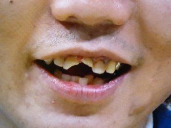 小宮の欠けている歯