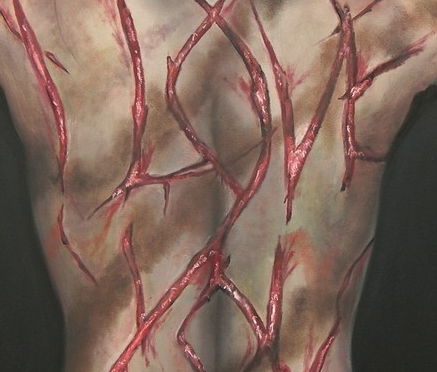 rug_bloed