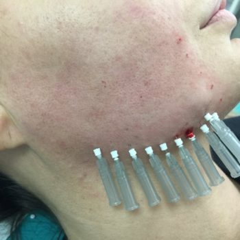 Mezoniti - zatezanje lica