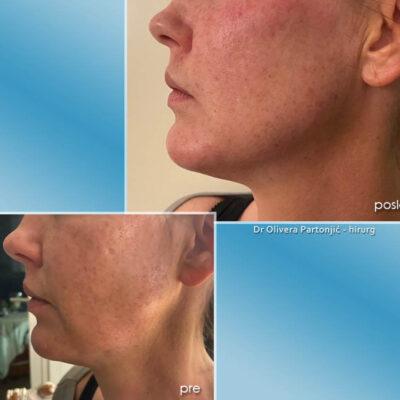 remodeliranje lica filerima