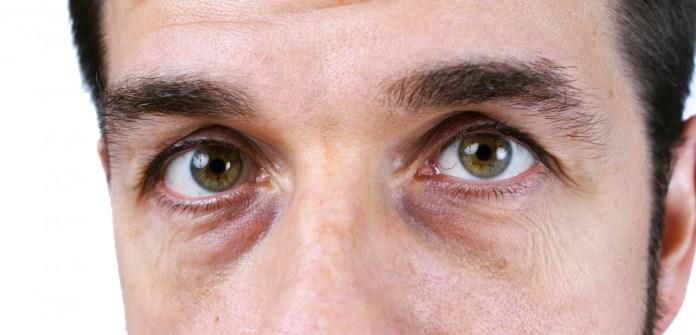 como-tratar-olheiras
