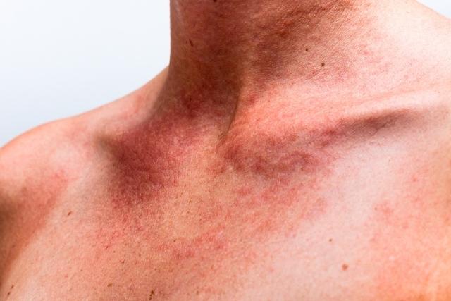 alergias de pele mais comuns