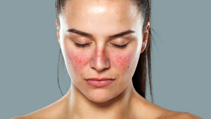 causas do lupus