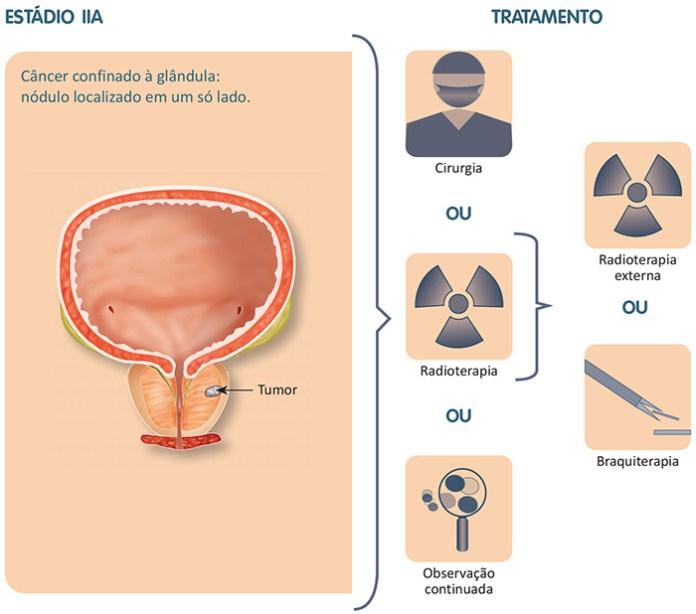 Tratamento câncer de próstata