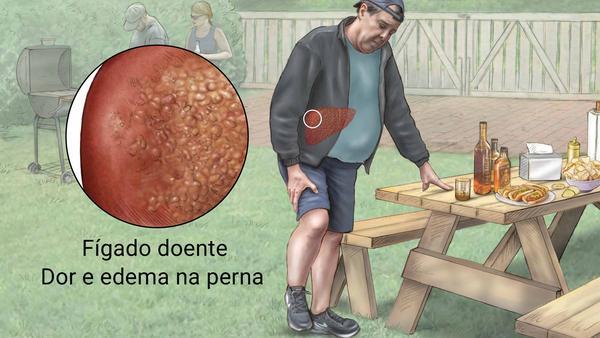 Fígado doente, dor e edema na perna