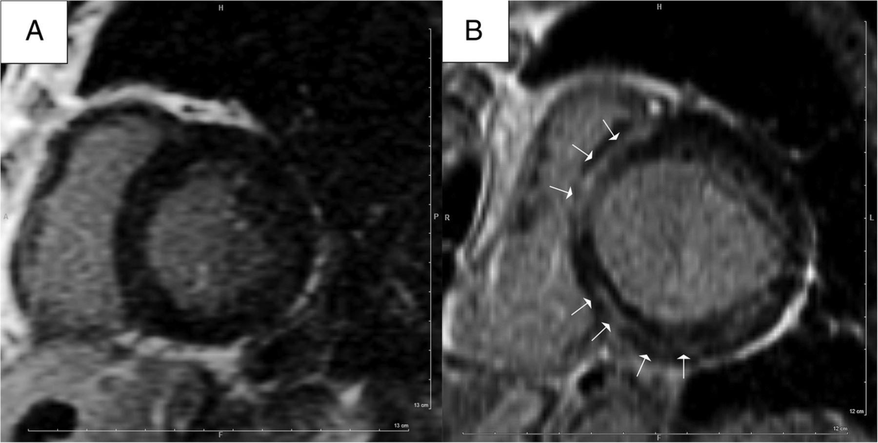 MRI and serum highsensitivity C reactive protein predict