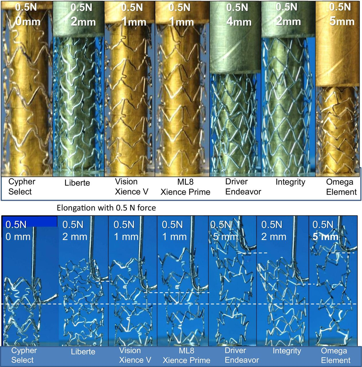 Long And Short Of Optimal Stent Design Open Heart
