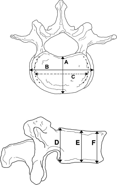 The site of the measurements in L4 vertebra.A: anteropo