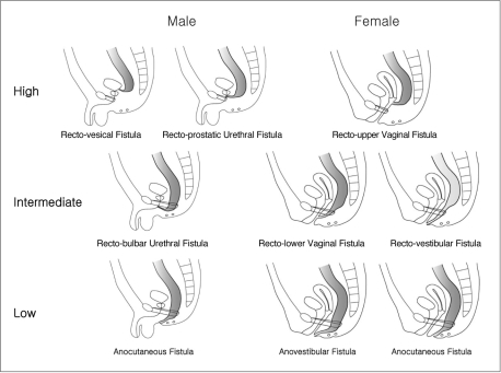 Schematic diagram of various internal fistulas for male