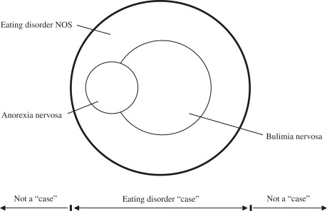 fig1:Eating disorder NOS (EDNOS): an example of the
